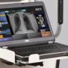 SourceRay SR130 DR Portable X-Ray img 1